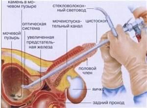 Лечение простатита в санатории пятигорска