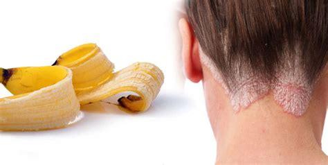 banana peel  psoriasis treatment home