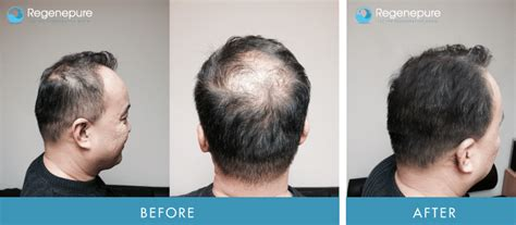 Learn How Ketoconazole & Minoxidil Can Grow Your Hair Back!