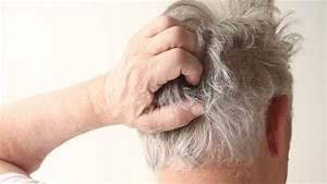 Scalp psoriasis treatment shampoo