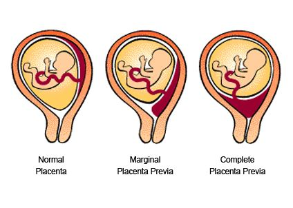 Hamil Muda Pendarahan 20 Weeks Pregnant Ultrasound Photos 8 Multiphoton Laser