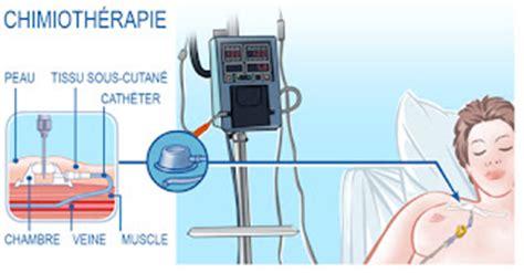 chambre d implantation pour chimio la chimiothérapie le cancer du sein