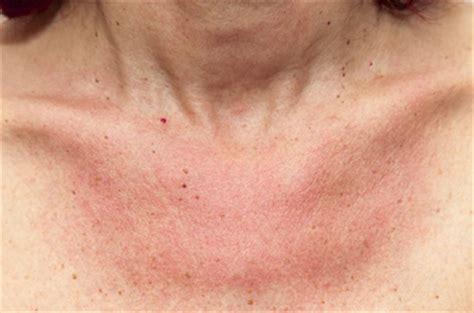 lichtallergie symptome und ursachen der polymorphen