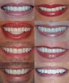 Color Shades of Porcelain Veneers for Teeth