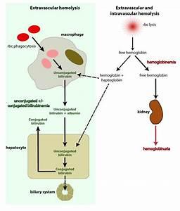 Bilirubin And Hemolytic Anemia