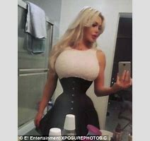 Swedish Model Spent K On Surgery To Look Like Jessica Rabbit Now Wants Bum Implants Daily