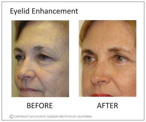 eyelid enhancement plastic surgery institute  california