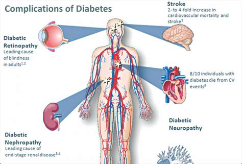 tips  avoid diabetes complications  daily star
