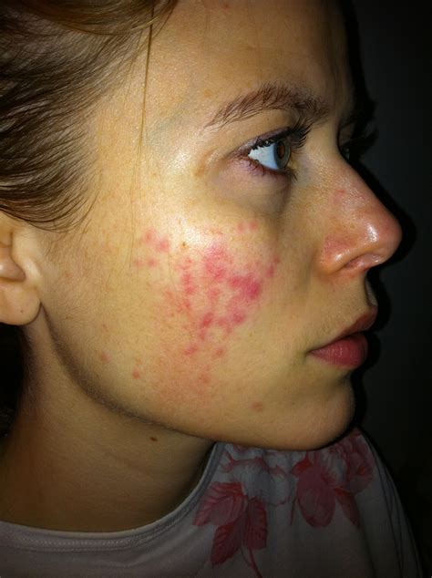 Rosacea Images The Gallery For Gt Moderate Rosacea