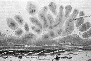 Папиллома на яичках у мужчин лечение