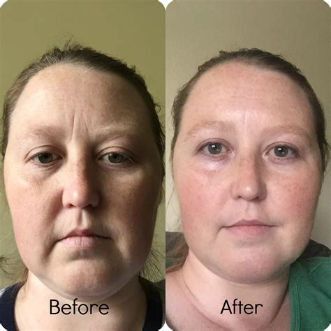 Timeless Anti Wrinkle Serums  Review  Amundsen House Of. What Is Kitchen Appliances. Glass Highlighter Tiles For Kitchen. Whole Kitchen Appliance Package. Kitchen Appliance Packages Deals. Kitchen Island Dining Set. Tile Stickers Kitchen. Kitchen Appliances Distributors. Britannia Kitchen Appliances