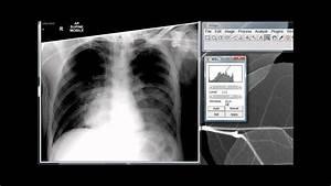 Image Critique  Portable Chest X-ray