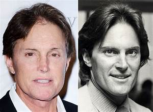 Male Celebrities Who Have Admitted To Plastic Surgery And Other Cosmetic Procedures  HuffPost