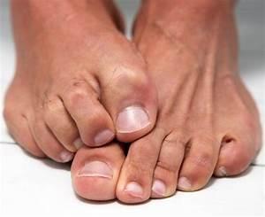Как победить грибок на ногтях в домашних условиях