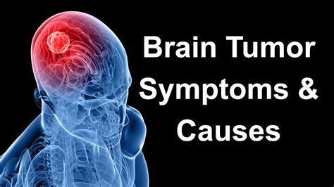 Brain Tumor Symptoms Signs Treatment Surgery Types  Autos. Proven Tactics Signs. Lynch Signs Of Stroke. Instagram Post Signs Of Stroke. Printing Signs Of Stroke. Construction Area Signs Of Stroke. Red Octagon Signs. Lingular Signs. Speech Therapy Room Signs