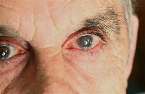 pain relief for scratched cornea