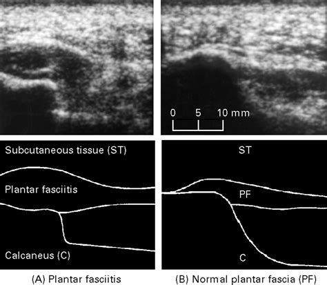 Ultrasound guided injection of recalcitrant plantar ...