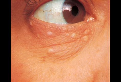pictures  skin diseases  problems syringoma