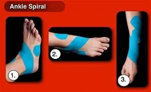 Kinesiology Taping An Ankle Sprain