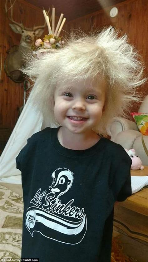 people  uncombable hair syndrome oddee