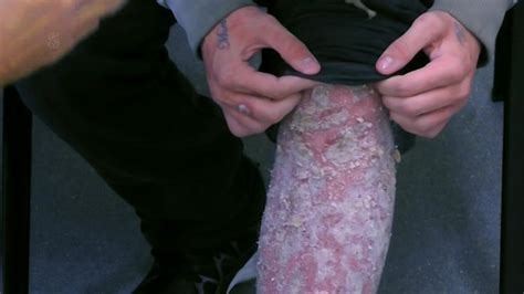 psoriasis sufferers leg left covered  agonising scales