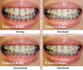 Day 90: Three Months into Treatment (with Progression Comparison ... Inability to bite down on tooth