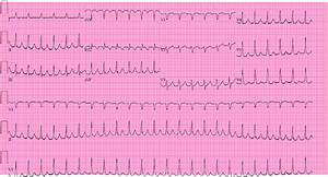 Ecg Of The Month  68