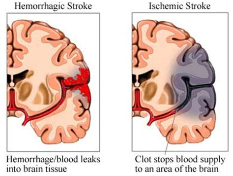 The Brain Geek Neuro First Aid Stroke. Memes Signs Of Stroke. Polycystic Ovary Signs. Technical Foul Signs Of Stroke. Unique Signs. Real Estate Office Signs Of Stroke. No Guns Allowed Signs. Wait Signs. Workplace Safety Signs Of Stroke