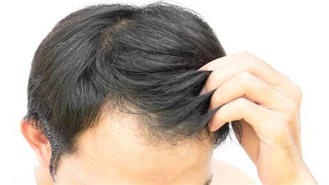 Images Of Hair by Early Baldness Greying Of Hair Ups Risk Of Disease