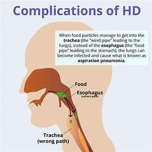 Complications Of Huntington U0026 39 S Disease