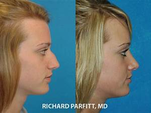 Side view before and after rhinoplasty surgery with Dr ...