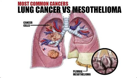 kind  cancers  asbestos exposure