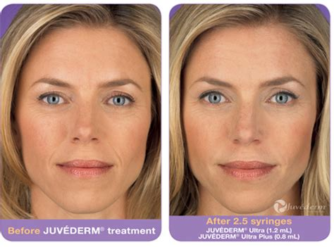 Bibit Collagen Dr Glow juv 233 derm fillers in doylestown pa and lip fillers