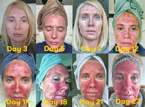 graphic   skin precancer treatment