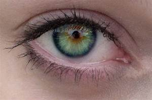 What I Learned from Daniel : The Blog: Central Heterochromia