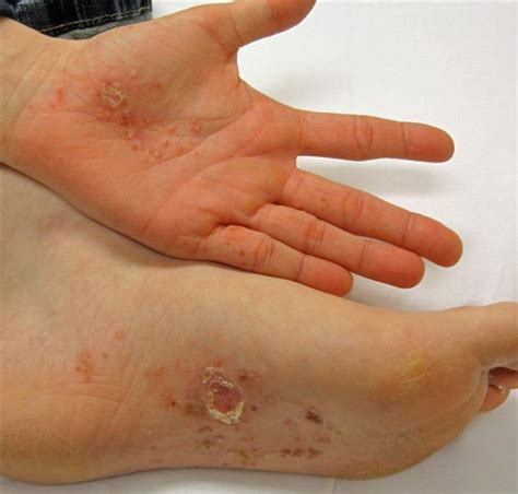 Dyshidrotic Eczema Home Remedies by Dyshidrotic Eczema Treatment December 2010 Dyshidrotic