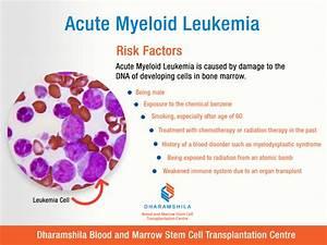 Acute Myeloid Leukemia   Risk Factors Acute Myeloid Leukemia  Aml  Is A Disorder Of The Process