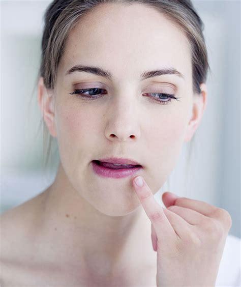 erkältung verhindern bei ersten anzeichen herpes symptome so k 252 ndigen sich die bl 228 schen an lippenherpes