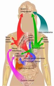 Surgical Oncology Program - Liver Metastases  Shoulder Pain Bone tumors
