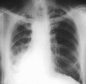 asbestos health monitoring chp onsite