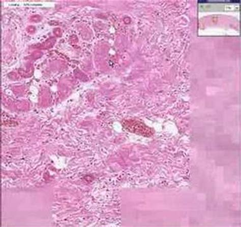 histopathology skin dry gangrene youtube