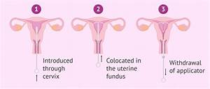 How Does The Iud Work And What Are The Pros  U0026 Cons
