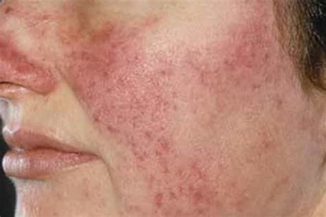dry patches  face flaky peeling red white pictures