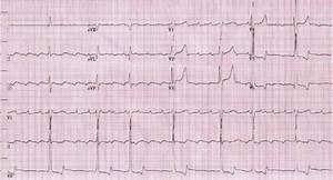 Admission Ecg Showing Slow Atrial Flutter At An Atrial