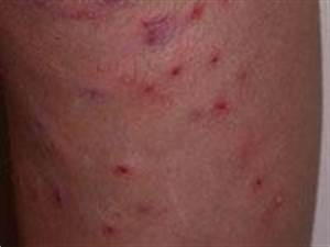 Rashes affecting the lower legs | DermNet New Zealand