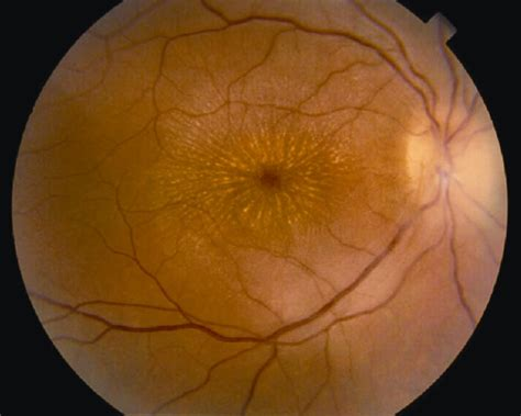 cat scratch disease american academy  ophthalmology