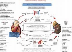 Cardio   renal syndrom...