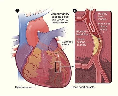 Heart Blockage Symptoms. Colic Signs Of Stroke. Interpretive Signs. Diagnostic Signs. Basketball Fan Signs Of Stroke. Cheap Signs. Congruent Signs Of Stroke. Wikihow Signs. Kitchen Hygiene Signs Of Stroke