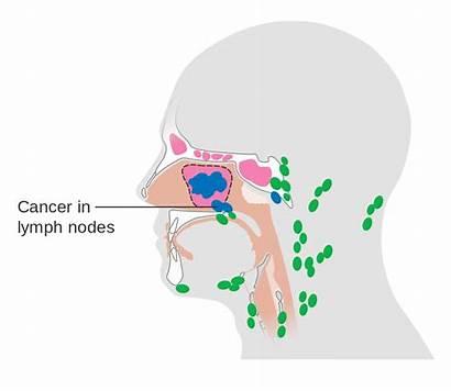 Lymph Nodes Cancer Spread Sinus Svg Maxillary
