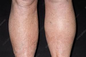 Lymph swelling in Hodgkin's disease - Stock Image - M131/0659 - Science Photo Library Hodgkin's Disease